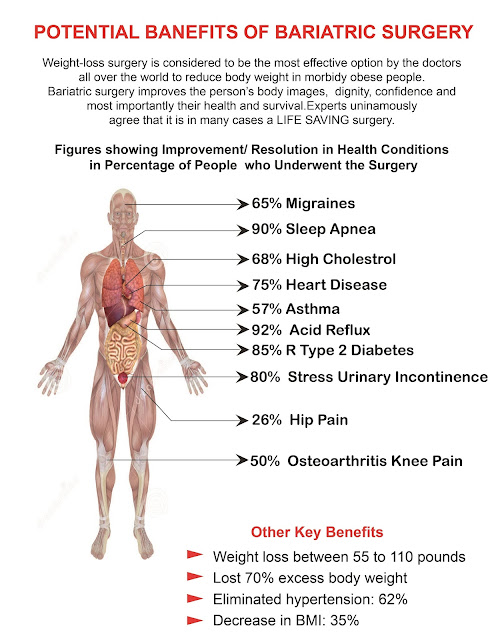 benefits-bariatric-surgery