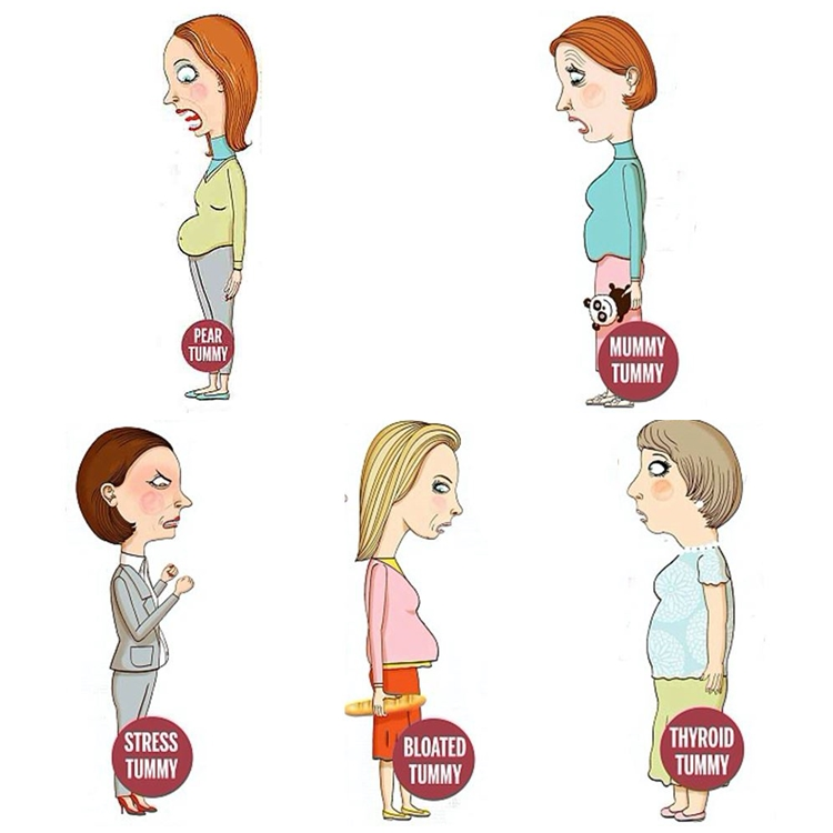 jenis jenis perut buncit pada wanita