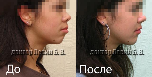 Улучшение профиля лица благодаря лечению брекетами