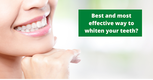 Best and most effective way to whiten your teeth