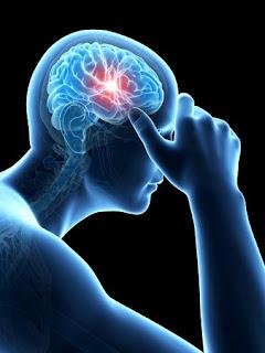 Cara menyembuhkan penyakit stroke