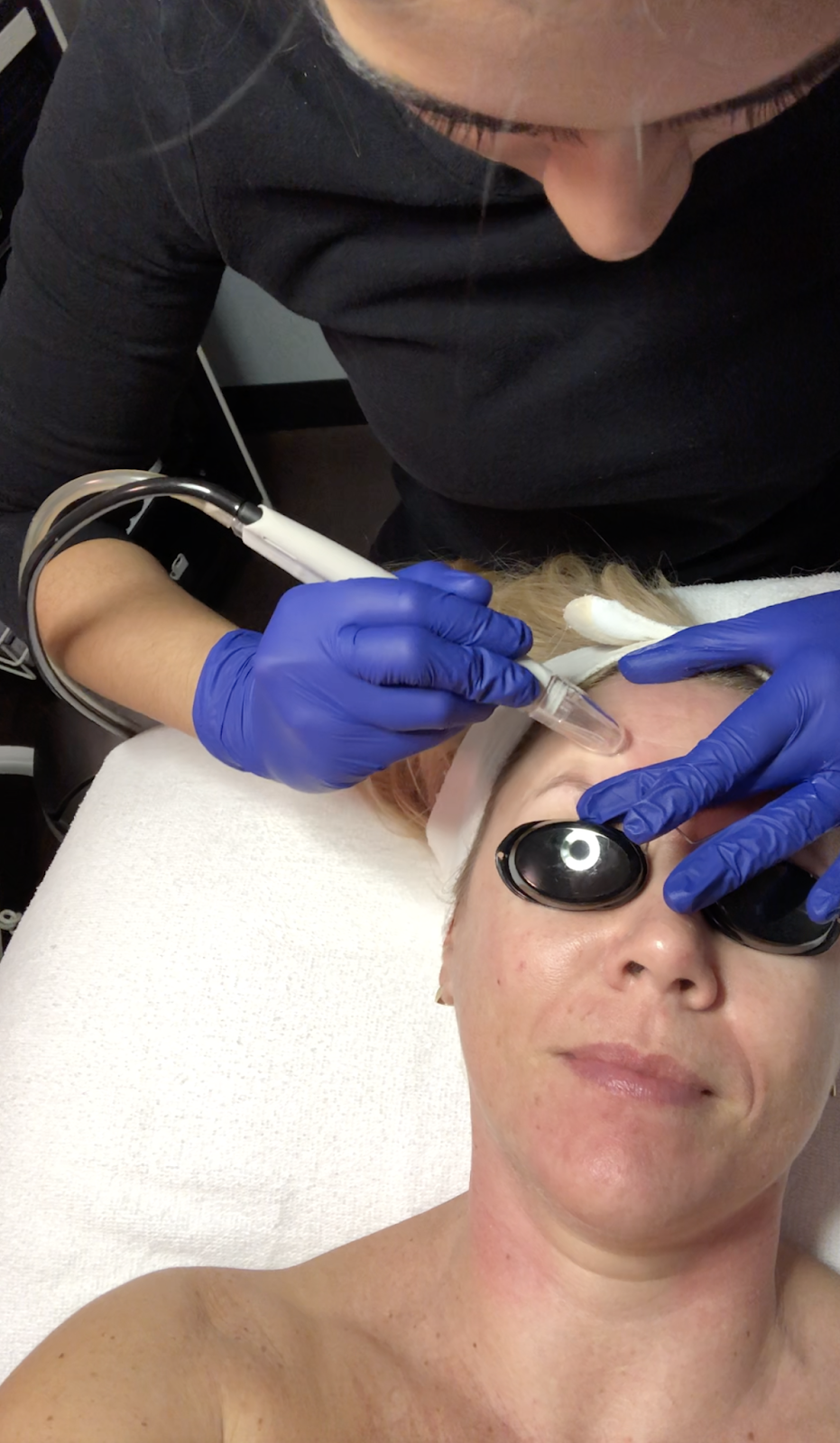 Microdermabrasion vs Dermaplaning: which one is better?