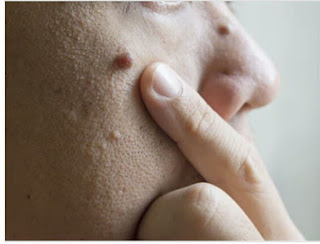 How to remove moles in hindi