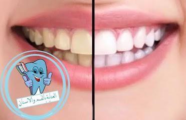 اسباب صفار الاسنان