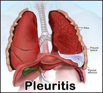 Image result for penyakit pleuritis
