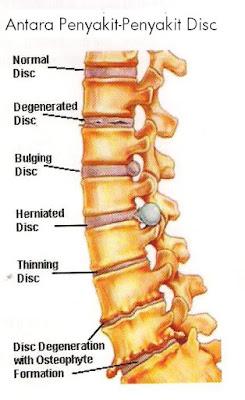 tasi sakit belakang akibat slip disc