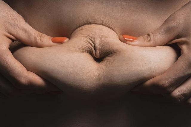 Kerak usus sebenarnya tidak wujud!
