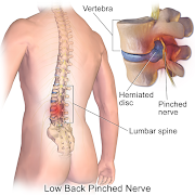 What is the recovery period after slip disc or herniated disc surgery?