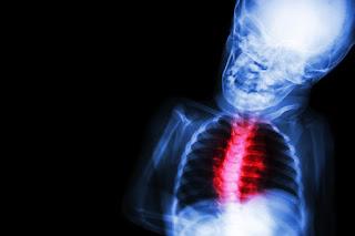 4. Total Anomalous Pulmonary Venous Return