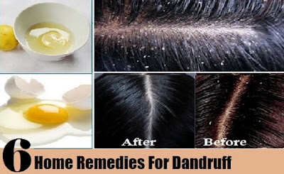 Remedies for Dandruff