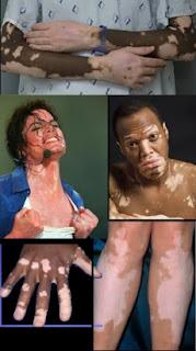 cara mengobati vitiligo agar bisa cepat sembuh permanen