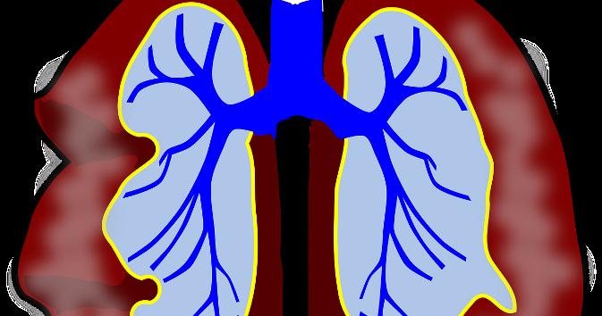 Image result for श्वसन संक्रमण से छुटकारा
