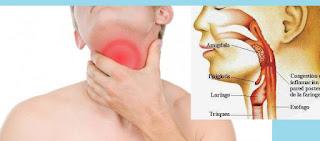 Penyakit Faringitis