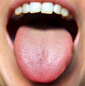 Image result for जीभ के रंग