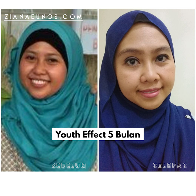 Testimoni Youth: 5 bulan Guna Youth Muka Makin Cantik Berseri!