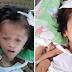 5-Anyos na Bata, May Dinadala ng Malubhang Karamdaman; Nangangailangan ng Tulong!