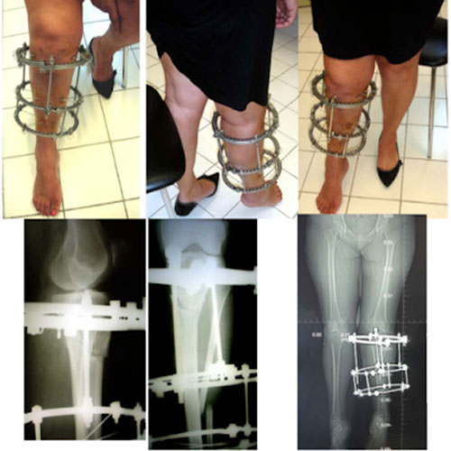 demo ilizarov, operasi ilizarov, ilizarov patah tulang, ilizarov tinggi badan, ilizarov tambah tinggi