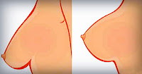 https://steviaven.blogspot.com/2018/05/consejos-y-tratamientos-evitar-caida-senos.html