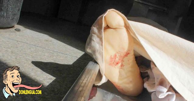 Le cortaron la cabeza a un auxiliar de farmacia en La Candelaria por no dejarse robar