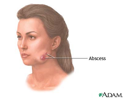 swelling face during pregnancy