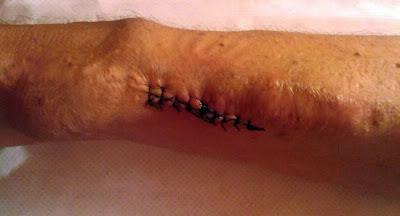 fotografía de fistula arteriovenosa recién intervenida