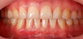 طريقة بسيطة و فعالة للتخلص من الجير المتراكم على الأسنان