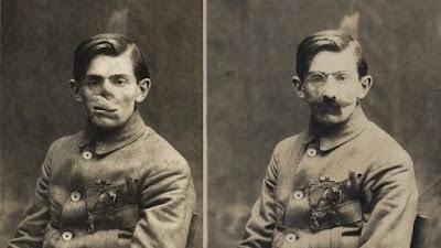 Travail d' artiste ! Anna Coleman Watts Ladd était un sculpteur américain, responsable de l'atelier de fabrication de masques du Croix-Rouge à Paris pendant la Première Guerre mondiale. Elle a travaillé avec les mutilés de la face, les hommes qui avaient pris des éclats d'obus, des balles et des lance-flammes au le visage.
