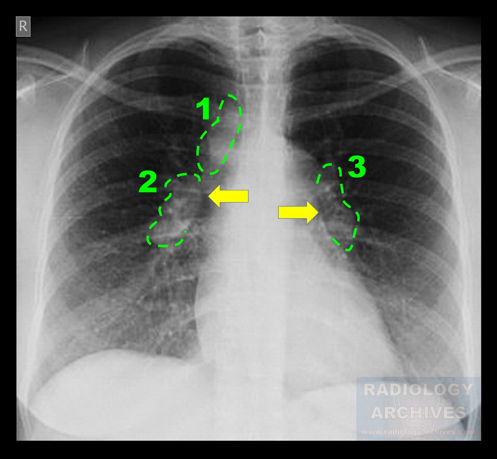 Sarcoidosis Stage II (1-2-3 Sign - Garland Triad)