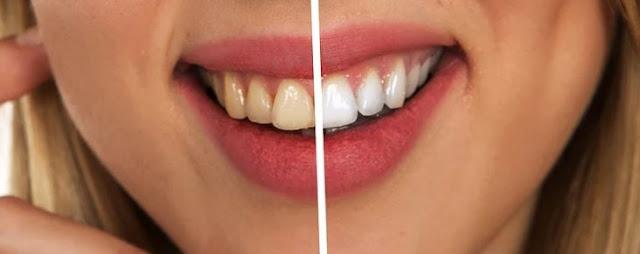 bright smile professional teeth whitening dentist care