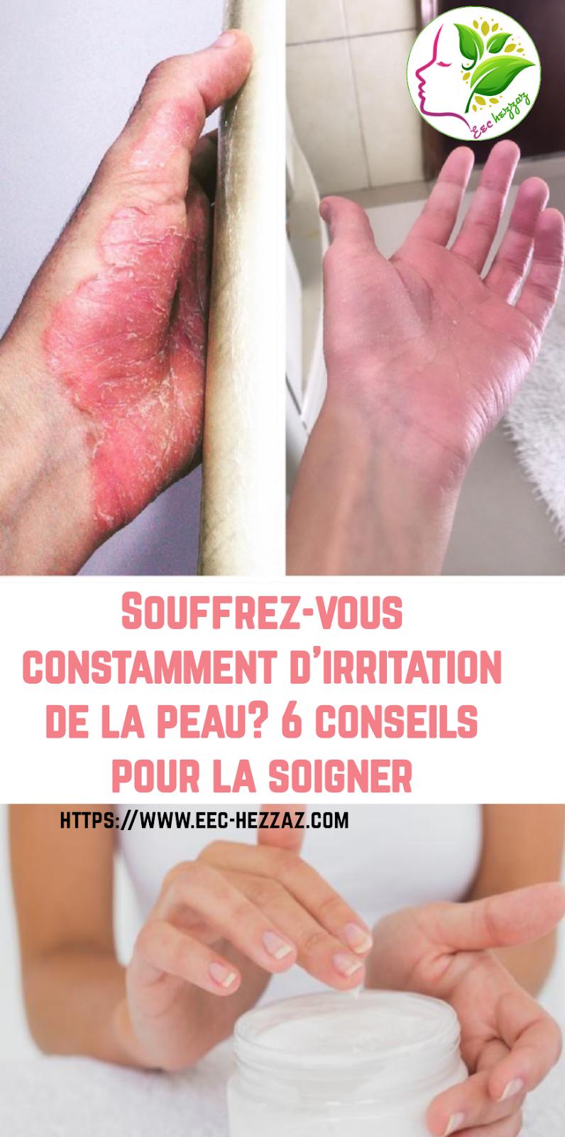 Souffrez-vous constamment d'irritation de la peau? 6 conseils pour la soigner