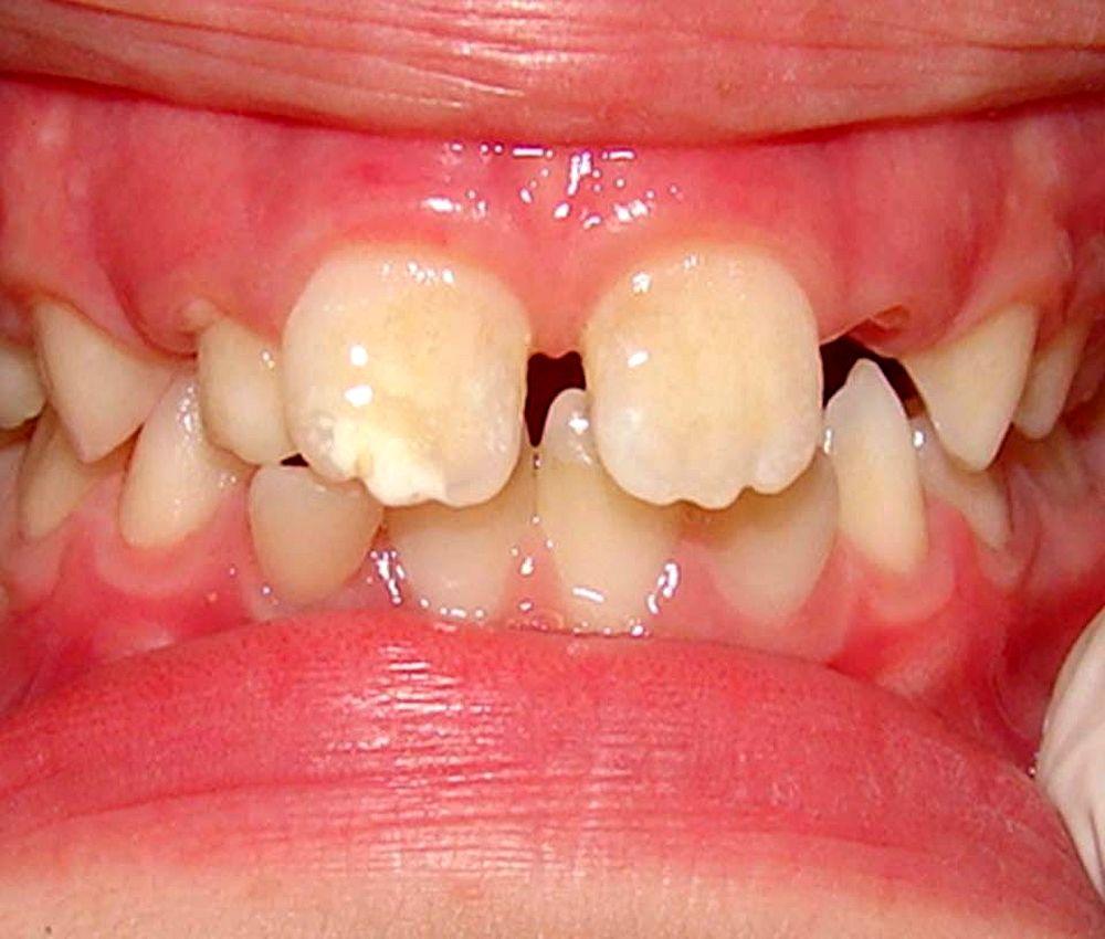 ortodoncia-preventiva