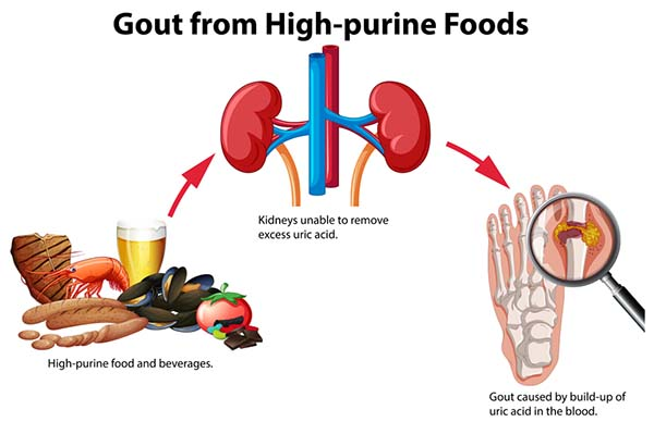 As mentioned uric acid in the kidneys or the Yunnan attract