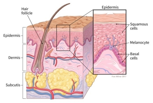 What Is Skin Cancer (meanoma)