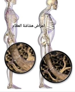 اعراض هشاشة العظام