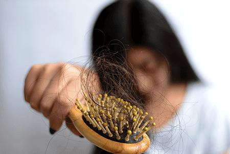 اسباب تساقط الشعر من الجذور وعلاجه