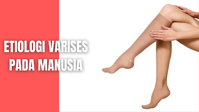 Etiologi Varises Pada Manusia Berbagai faktor intrinsik berupa kondisi patologis dan ekstrinsik yaitu faktor lingkungan bergabung menciptakan spektrum yang luas dari penyakit vena. Penyebab terbanyak dari varises vena adalah oleh karena peningkatan tekanan vena superfisialis, namun pada beberapa penderita pembentukan varises vena ini sudah terjadi saat lahir dimana sudah terjadi kelenahan pada dinding pembuluh darah vena walaupun tidak adanya peningkatan tekanan vena. Pada pasien ini juga didapatkan distensi abnormal vena di lengan dan tangan.  Herediter merupakan faktor penting yang mendasari terjadinya kegagalan katup primer, namun faktor genetik spesifik yang bertanggung jawab terhadap terjadi varises masih belum diketahui. Pada penderita yang memiliki riwayat refluks pada safenofemoral junction (tempat dimana v. Safena Magna bergabung dengan v. femoralis kommunis) akan memiliki risiko dua kali lipat. Pada penderita kembar monozigot, sekitar 75 % kasus terjadi pada pasangan kembarnya.angka prevalensi varises vena pada wanita sebesar 43 % sedangakan pada laki-laki sebesar 19 %.  Keadaan tertentu seperti berdiri terlalu lama akan memicu terjadinya peningkatan tekanan hidrostatik dalam vena hal ini akan menyebakan distensi vena kronis dan inkopetensi katup vena sekunder dalam sistem vena superfisialis.   Jika katup penghubung vena dalam dengan vena superfisialis di bagian proksimal menjadi inkopeten, maka akan terjadi perpindahan tekanan tinggi dalam vena dalam ke sistem vena superfisialis dan kondisi ini secara progresif menjadi irreversibel dalam waktu singkat.  Setiap orang khususnya wanita rentan menderita varises vena tungkai, hal ini dikarenakan pada wanita secara periodik terjadi distensi dinding dan katup vena akibat pengaruh peningkatan hormon progrestron.Kehamilan meningkatkan kerentangan menderita varises karena pengaruh faktor hormonal dalam sirkulasi yang dihubungkan dengan kehamilan.   Hormon ini akan meningkatkan kemampuan distensi dinding vena dan me