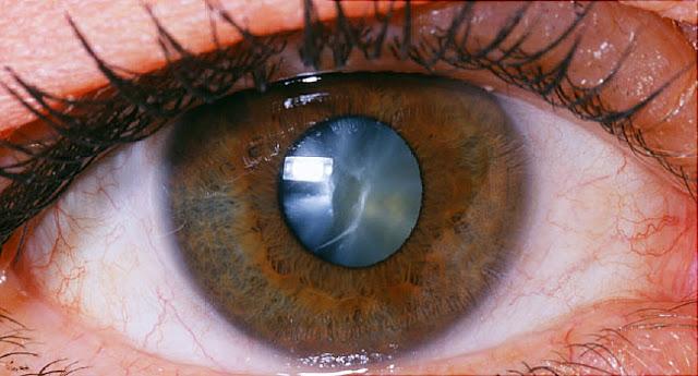 Catarata: el cristalino (detrás de la pupila) pierde la transparencia normal.