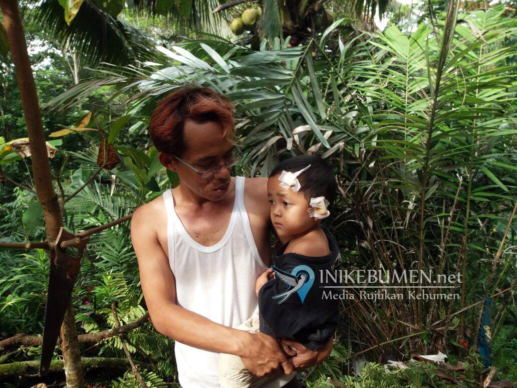 Rumah Tertimpa Pohon, Satu Balita di Ayah jadi Korban