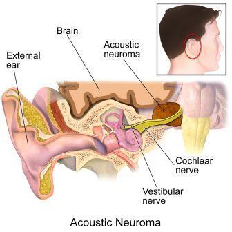 आंनद  कुमार  ब्रेन ट्यूमर एकॉस्टिक न्यूरोमा से ग्रसित है जानिए इस बीमारी को | Anand kumar suffering from brain tumor acoustic neuroma