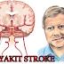 Atasi Penyakit Stroke Dengan Tepat Dan Cepat