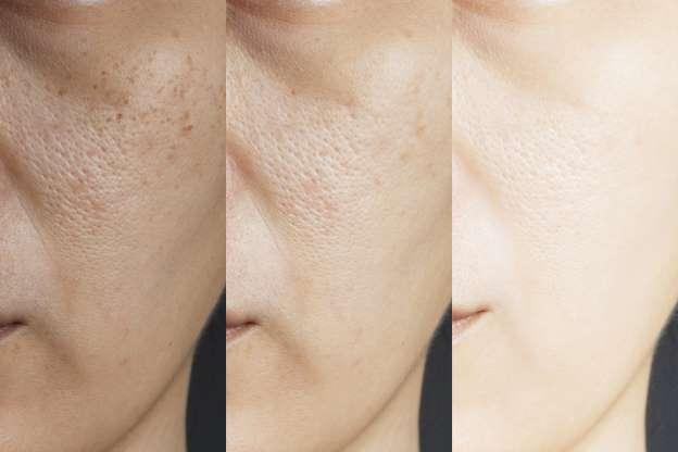 Comment fermer les pores ouverts du visage en seulement 2 minutes