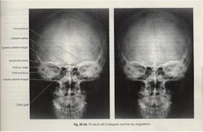 Teknik Radiografi Cranium