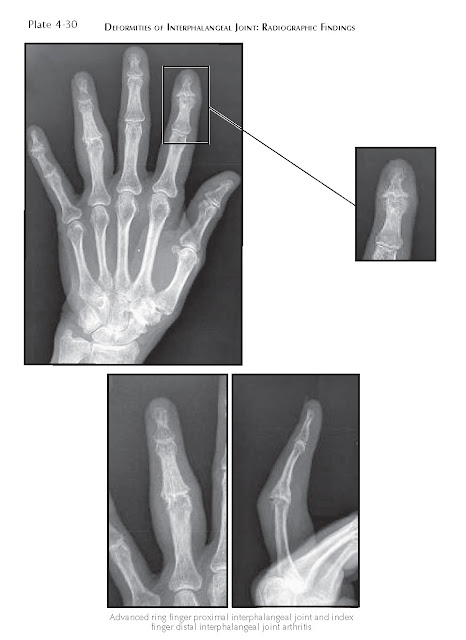 DEFORMITIES OF INTERPHALANGEAL JOINT