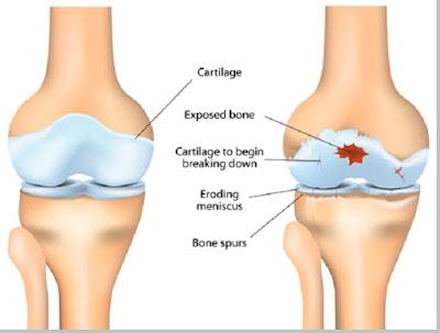 Osteoathritis (penurunan fungsi tulang persendian) - berbagaireviews.com