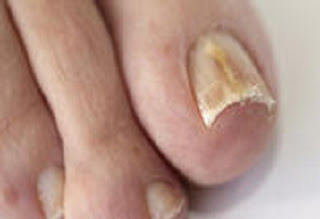 Know all about Fungal Nail Infection. Its Causes, Risk Factors, Symptoms, Diagnosis,Treatment and Prevention. letsupdate