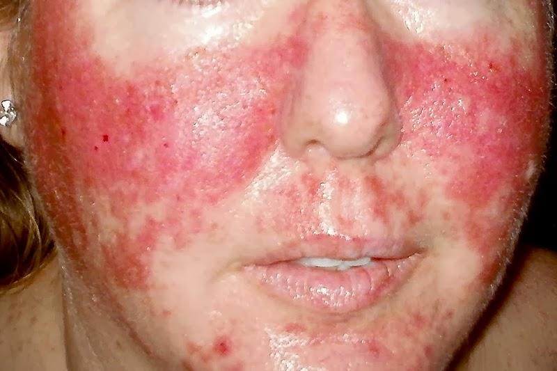 Types Of Skin Rashes S...