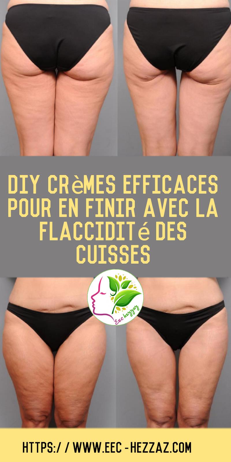 DIY crèmes efficaces pour en finir avec la flaccidité des cuisses
