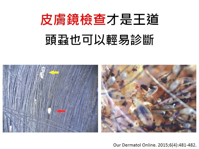 以皮膚鏡檢查診斷頭蝨、體蝨、陰蝨