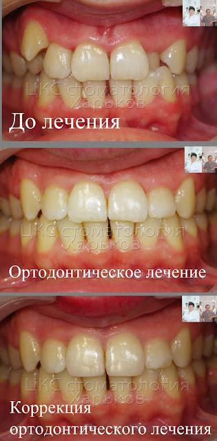 Зубы до и  после лечения брекетами, а также и после коррекции формы зубов