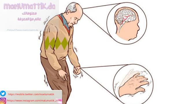 مرض- باركنسون-Parkinson's